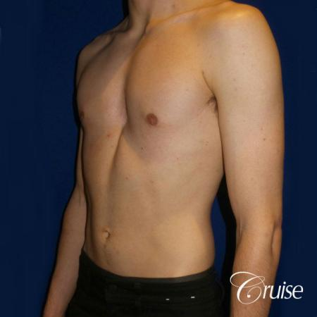 Top Gynecomastia Specialist Dr. Cruise -  After Image 3