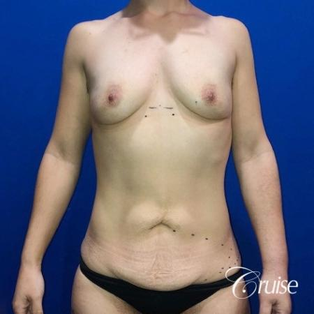 Breast Augmentation, Tummy Tuck - Before Image 1