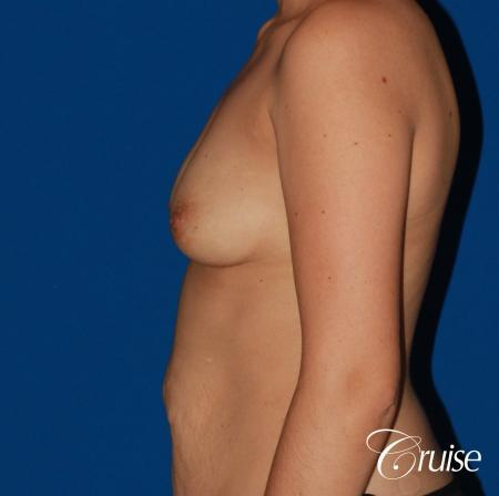 Breast Augmentation - Before Image 2
