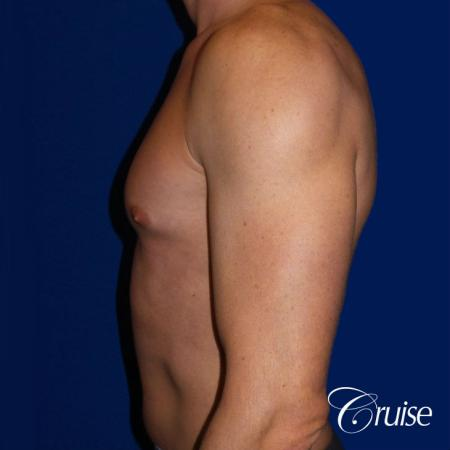 Mild Gynecomastia -Puffy Nipple -Areola Incision - Before and After Image 3
