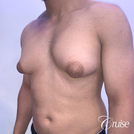 gynecomastia surgery - Before 3