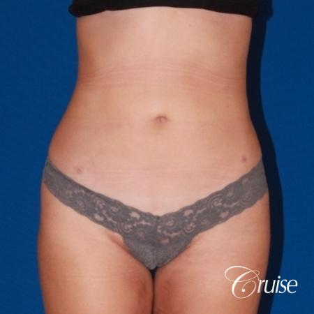 liposuction love handles and tummy - After