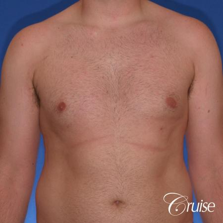 best Puffy nipple correction and gynecomastia on young adult - After Image 1