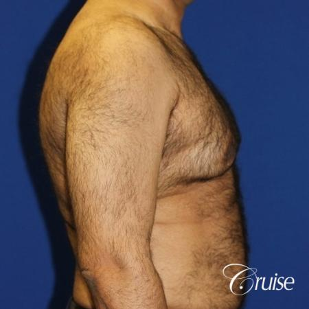 40 year old with severe gynecomastia results - Before and After Image 3