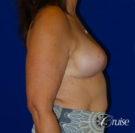 Breast Reduction - No Implants - After Image 4