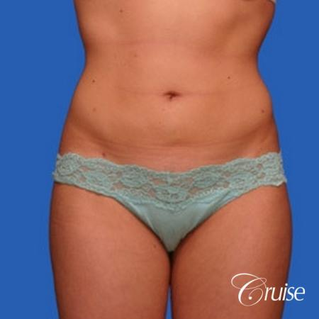 best liposuction results on abdomen, flanks, thighs -  After Image 1