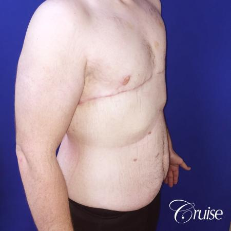 severe gynecomastia -  After Image 3