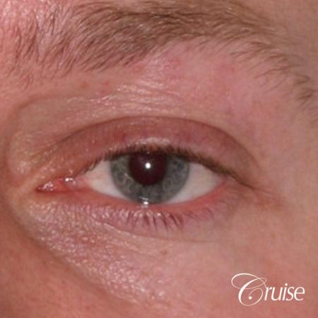 male soft tissue filler Juvaderm - After Image