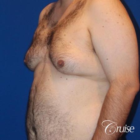 gynecomastia with free nipple graft - Before 2