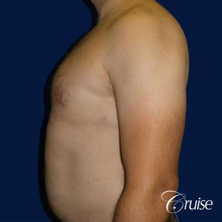 male breast reduction surgery -  After Image 3