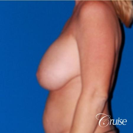 best breast lift revision with saline 270cc - Before Image 2