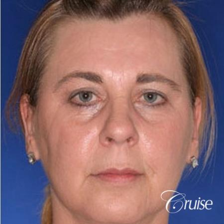 Fat Transfer - Tear Trough, Lower-Lids - Before Image