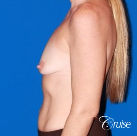 moderate profile saline breast lift anchor before and after pictures - Before Image 2