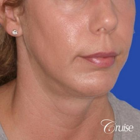 best medium anatomic chin implant on female -  After Image 3
