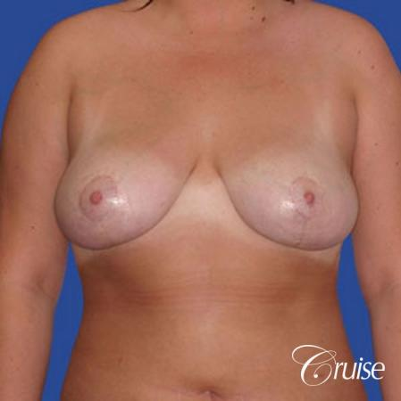 best breast reduction lift without implants newport beach - After Image