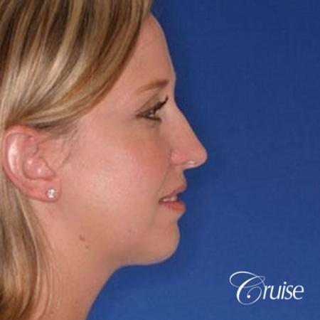 best plastic surgeon for chin augmentation implant - After Image 2