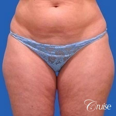 best liposuction abdomen, flanks and thighs - Before Image 1