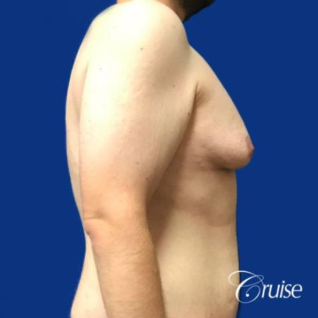 Pedicle incision Dr. Cruise Newport Beach CA - Before Image 4