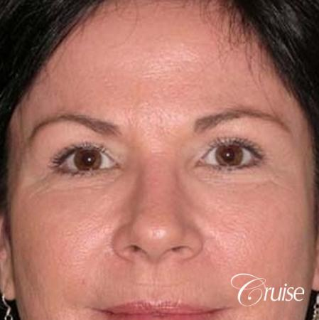 best plastic surgery on upper eyelids - After Image