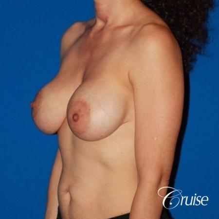 best breast lift revision with high profile silicone 425cc - Before Image 3