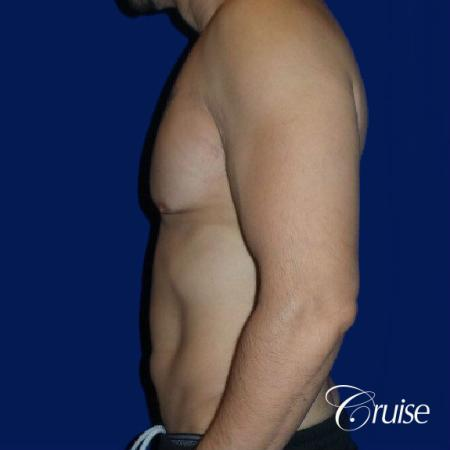 Type 3 Skin Laxity Gynecomastia with Nipple Elevation - Before 2