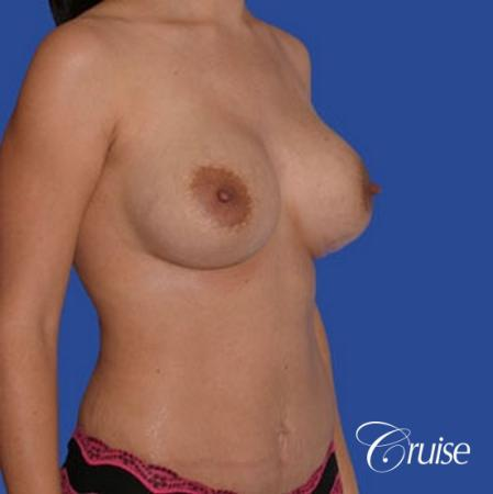 mini tummy tuck with silicone breast revision -  After Image 3