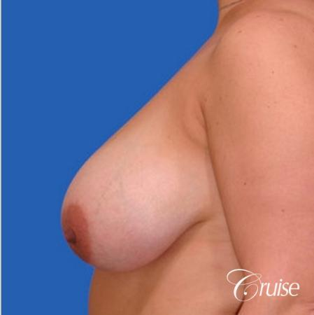 before and after pictures of saline breast lift - Before Image 2