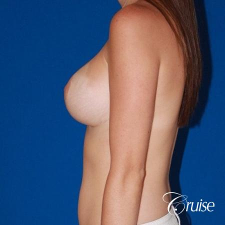 best breast lift and reduction with small saline implants -  After Image 2