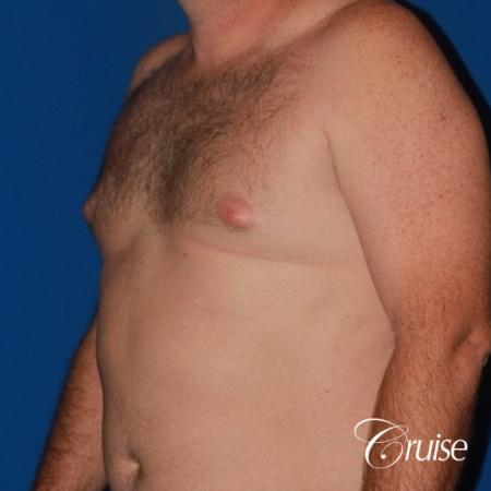 mild puffy nipple on 42 year old - Before Image 3