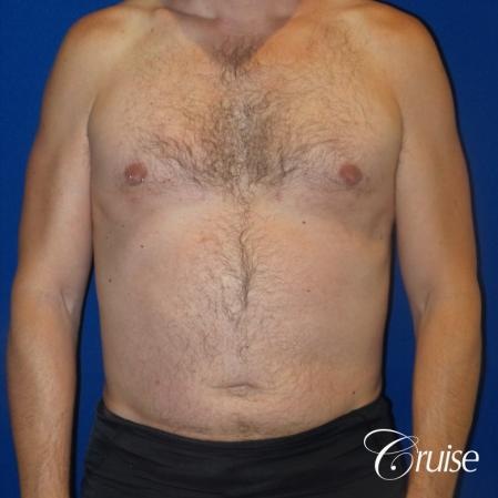 Best Gynecomastia surgeons Los Angeles -  After Image 1