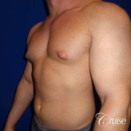 Pictures of young bodybuilder with gynecomastia - Before Image 2