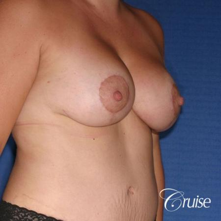 best results on young woman for breast lift anchor with saline augmentation -  After Image 4