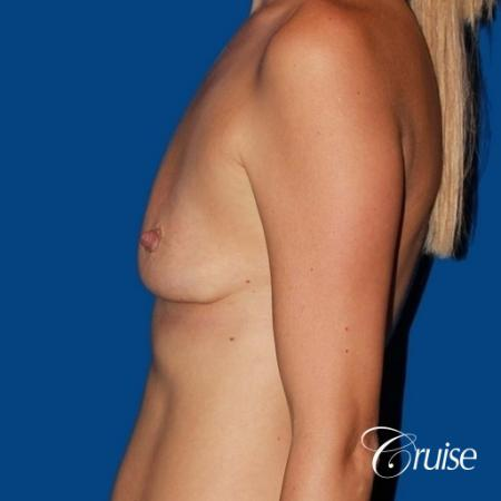 best breast lift anchor with High profile silicone 500cc implants - Before 2