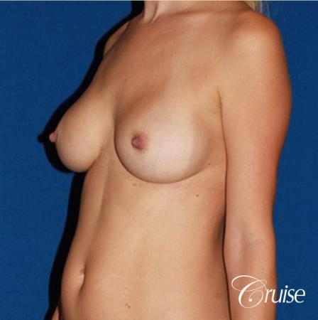 best breast revision for closer cleavage - Before Image 3