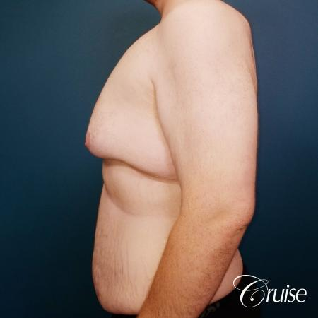 severe gynecomastia - Before and After Image 4