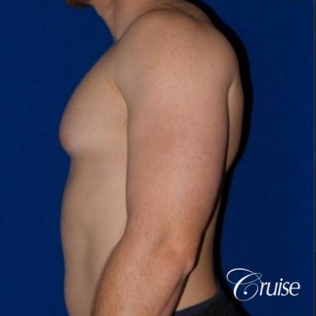 Dr. Cruise gynecomastia surgery photos - Before and After Image 5
