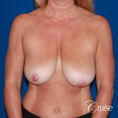 best breast lift with implants - Before Image 1