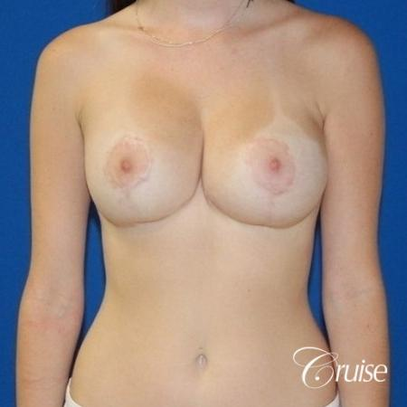 best breast lift and reduction with small saline implants -  After Image 1