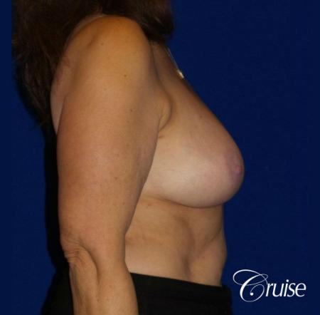 Breast Reduction - No Implants - Before and After Image 4