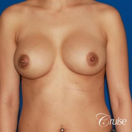saline capsular contracture breast revision pictures -  After Image 1