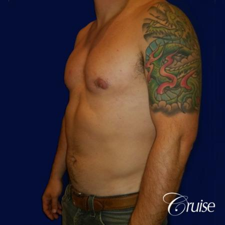 Moderate Gynecomastia -Areola Incision - After Image 3