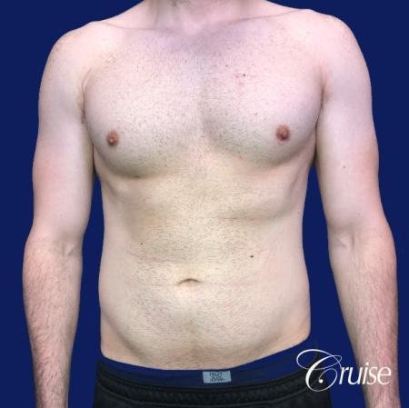 Moderate Gynecomastia -Areola Incision - Before Image 1