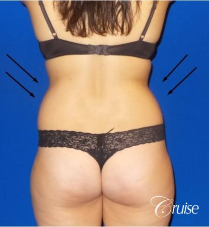 Liposuction -  Flanks - Before and After Image 3