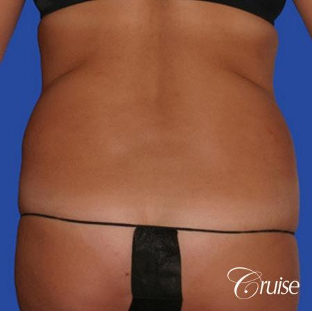 pictures of love handle liposuction - Before Image 1