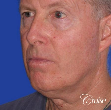 62 year old with chin implant and neck lift - Before Image 2