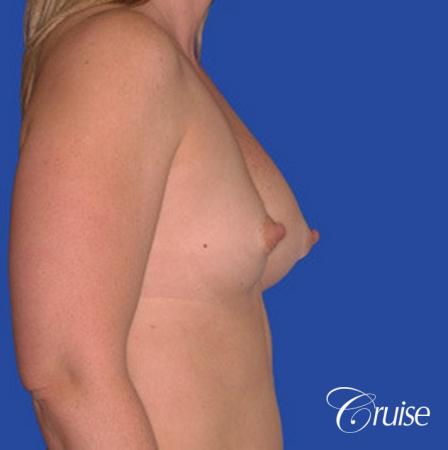 saline implant rupture newport beach plastic surgeon - Before and After Image 2