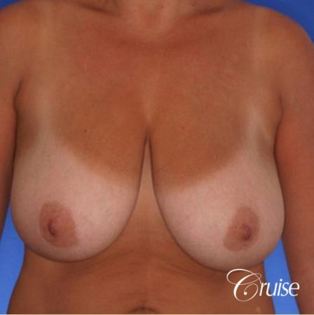 best pictures of breast lift anchor on 38 yr old mother - Before Image 1