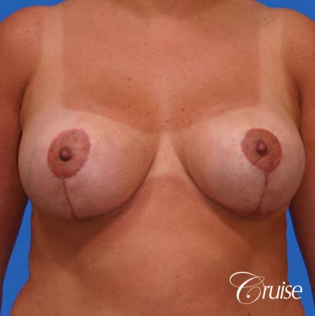 Best breast reduction with silicone augmentation -  After Image 1
