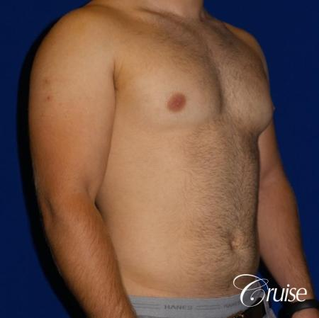 best gynecomastia results - Before Image 4