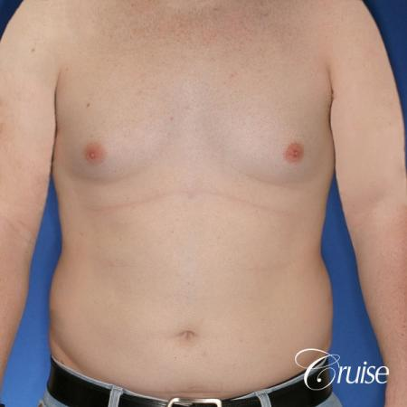 moderate chest gynecomastia and liposuction flanks - Before Image 1